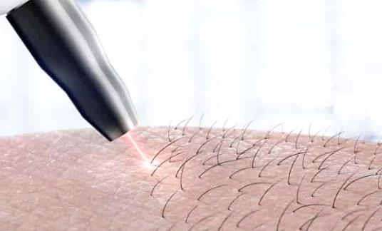 راهنمای کامل لیزر موهای زائد